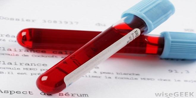 نگاهی به تست CBC در آزمایش خون