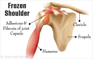 کپسولیت شانه(Frozen shoulder)