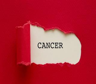 مردان 9 هشدار درباره سرطان را جدی نمی گیرند