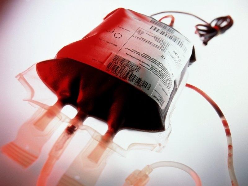 حجامت بهتر است یا اهدای خون؟