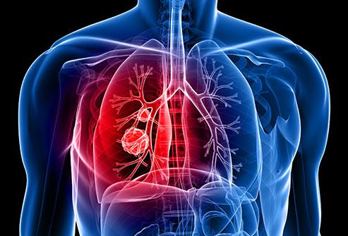 نحوه بررسی احتمال ابتلا سرطان ریه در مشاغل